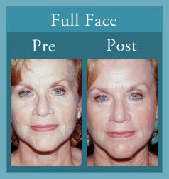 Facial laser resurfacing toronto
