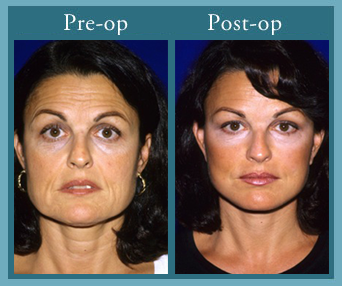 Live principle facial florida peel Jesuits educated